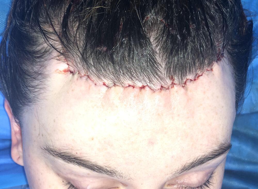 Lifting sans cicatrices après intervention à Paris - Dr Franchi