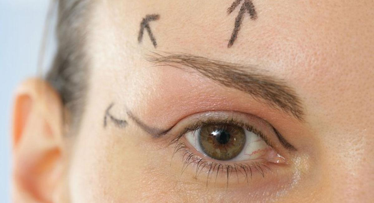 Lifting des sourcils avec Botox à Paris - Dr Franchi