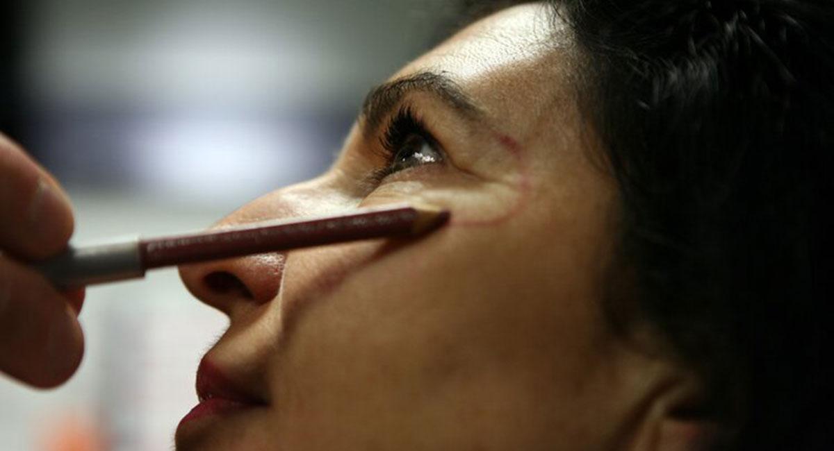 Injection d'acide hyaluronique à Paris - Dr franchi