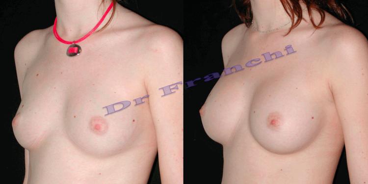Augmentation mammaire par implants à Paris - Dr Franchi