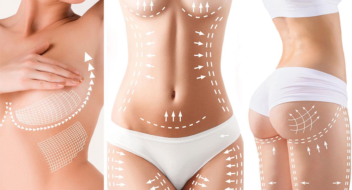 Chirurgie esthétique de la silhouette à Paris - Dr Franchi