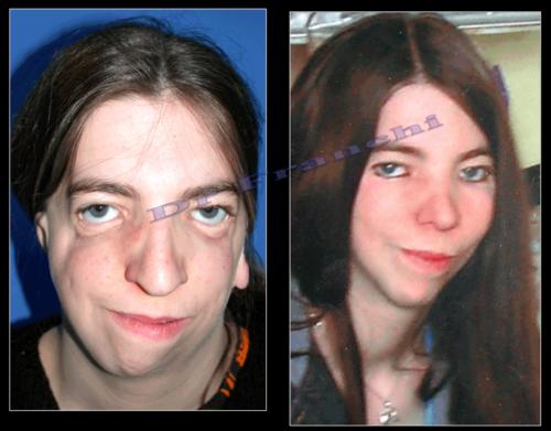 Chirurgie réparatrice du visage à Paris - Dr Franchi