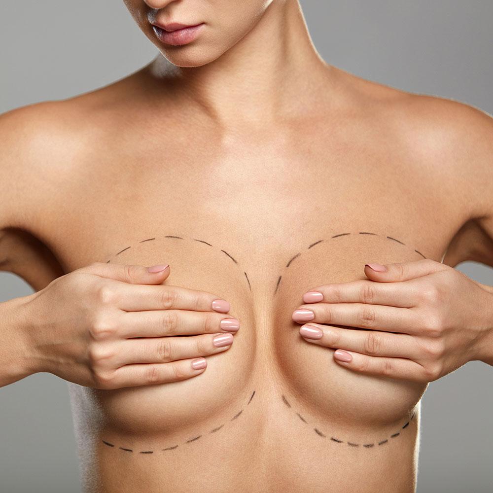 Chirurgie esthétique des seins à Paris - Dr Franchi