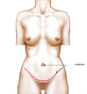 Cicatrices abdominoplastie - Dr Franchi à Paris