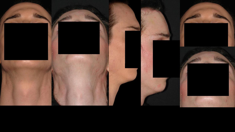 Feministation du visage à Paris - Dr Franchi