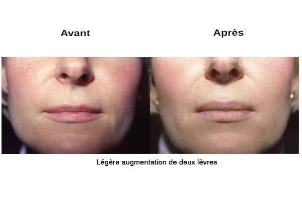 Injections d'acide hyaluronique pour les lèvres à Paris - Dr Franchi
