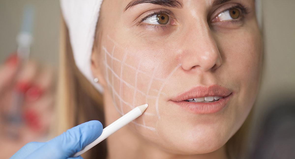 Injections pour combler les rides du visage à Paris - Dr Franchi