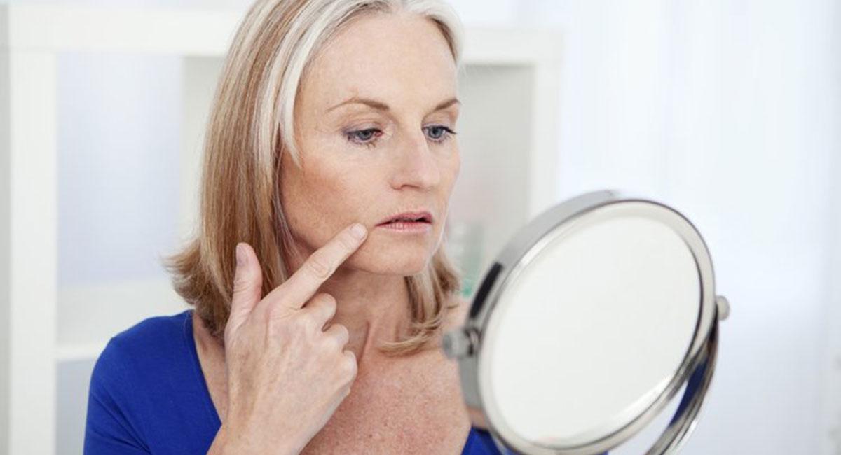 Injection de Botox pour le pli d'amertume - Dr Franchi à Paris