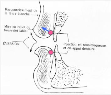 Les lèvres et injection d'acide hyaluronique - Dr Franchi