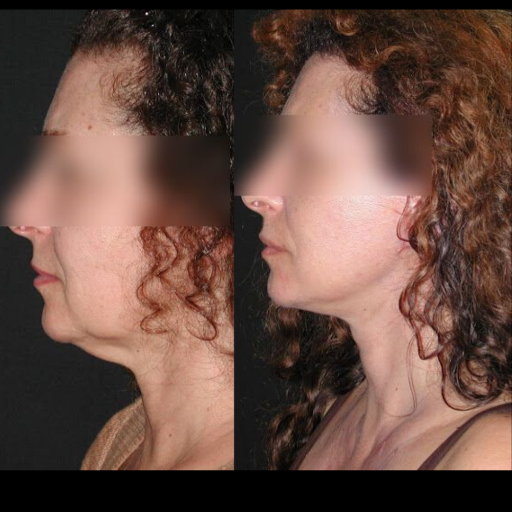 Lifting cervico-facial Paris - Dr Franchi