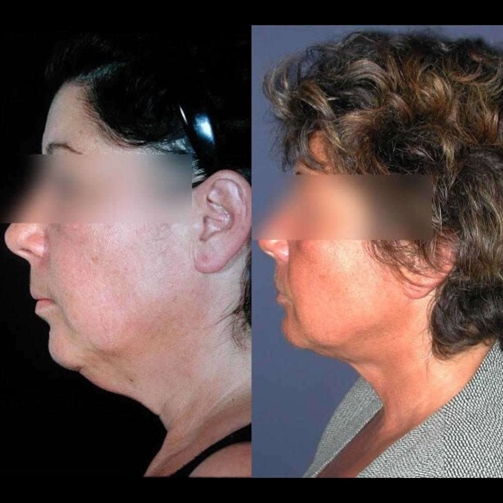 lifting-cervico-facial-paris-dr-franchi-31
