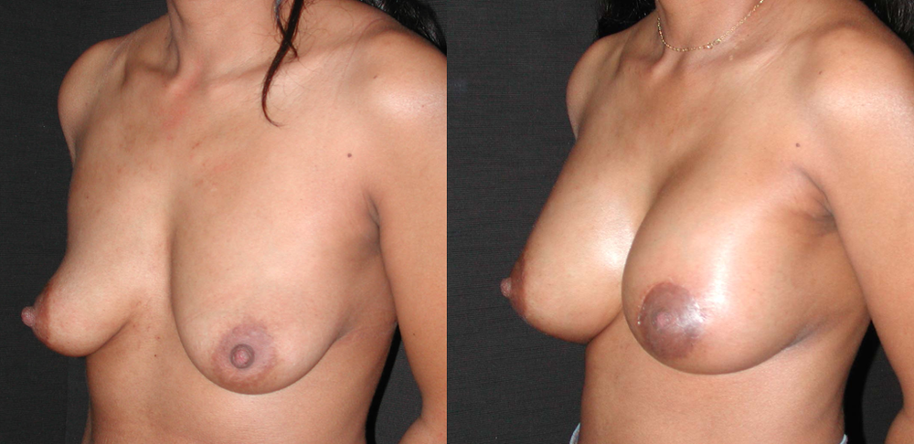 Lifting des seins avec implants à Paris - Dr Franchi