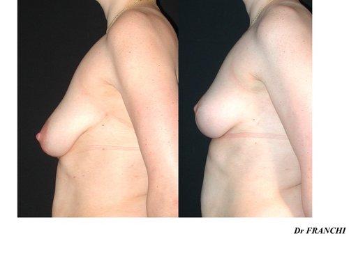 Lifting des seins sans implants à Paris - Dr Franchi