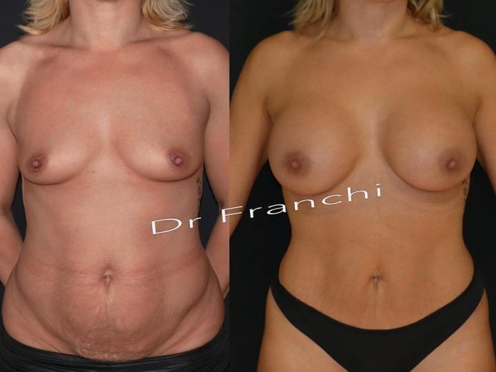 Prothèses mammaires composite à Paris - Dr Franchi