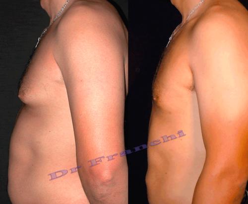 Chirurgie du ventre homme à Paris - Dr Franchi