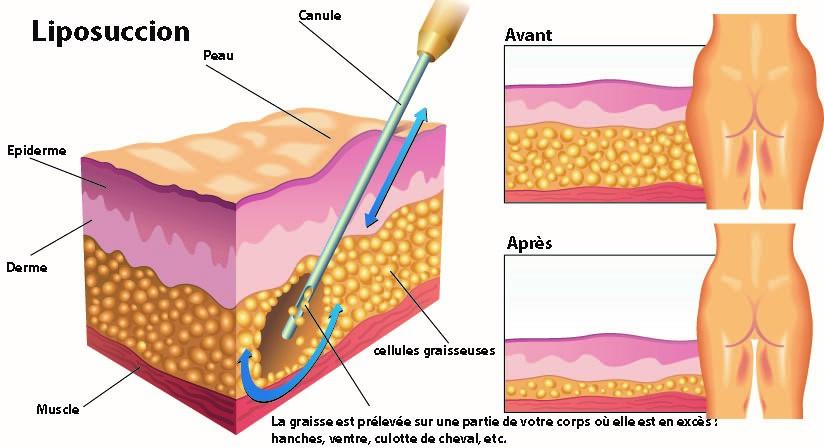 Les principes de la liposuccion - Dr Franchi à Paris