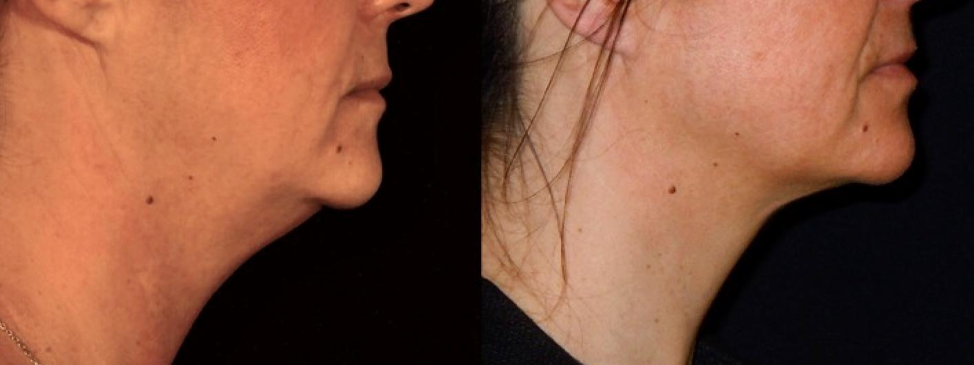 Liposuccion du visage et du cou à Paris - Dr Franchi