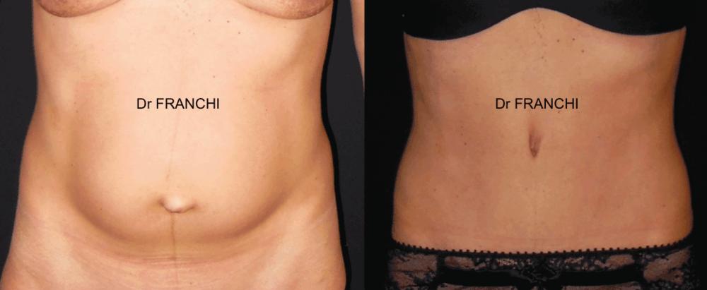 plastie-abdominale-paris-dr-franchi-01