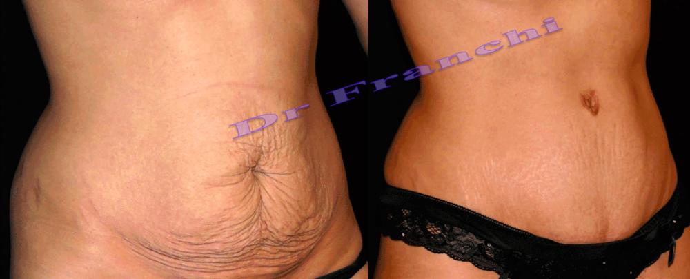plastie-abdominale-paris-dr-franchi-02