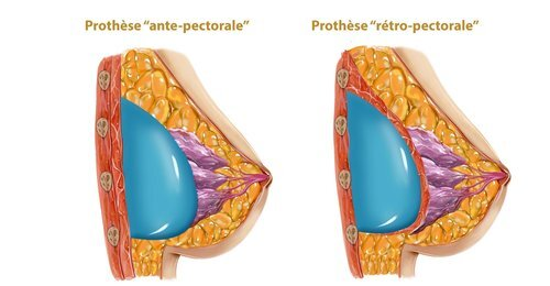 Positions des prothèses mammaires - Dr Franchi