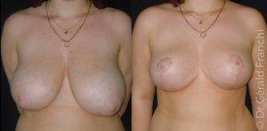 Réduction mammaire avant / après Paris - Dr Franchi