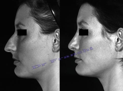 Rhinoplastie avant / après Paris - Dr Franchi