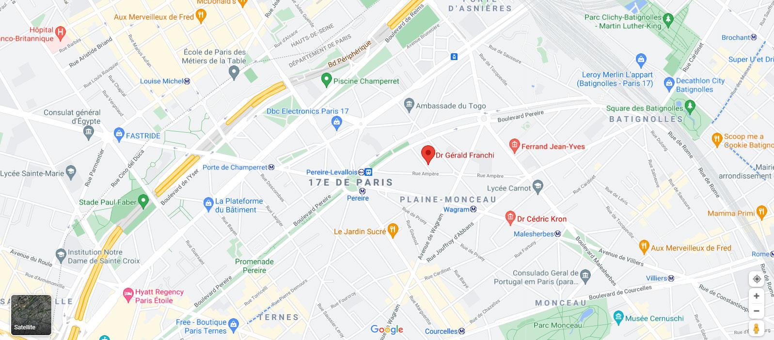 Plan d'accès Dr Franchi, chirurgien esthétique à Paris